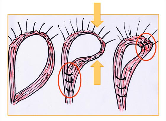 Figure7. Myoraphie postérieure et antérogauche