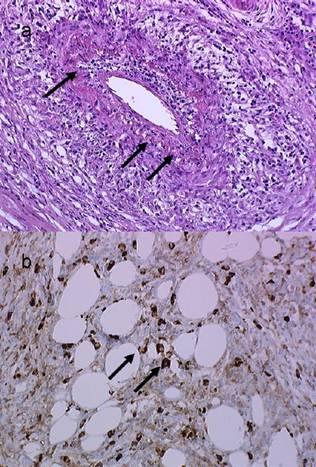 Coupe histologique de pancréatite auto immune de type 1. a- Présence d'un infiltrat lymphoplasmocytaire (flèches) abondant. b- Marquage positif immunohistochimique aux IgG4 (flèches)